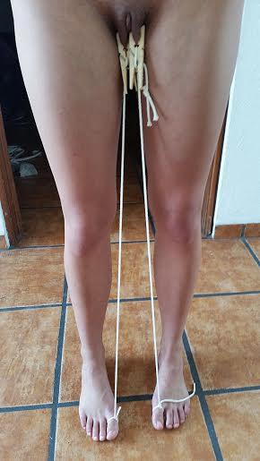 Walking difficulties